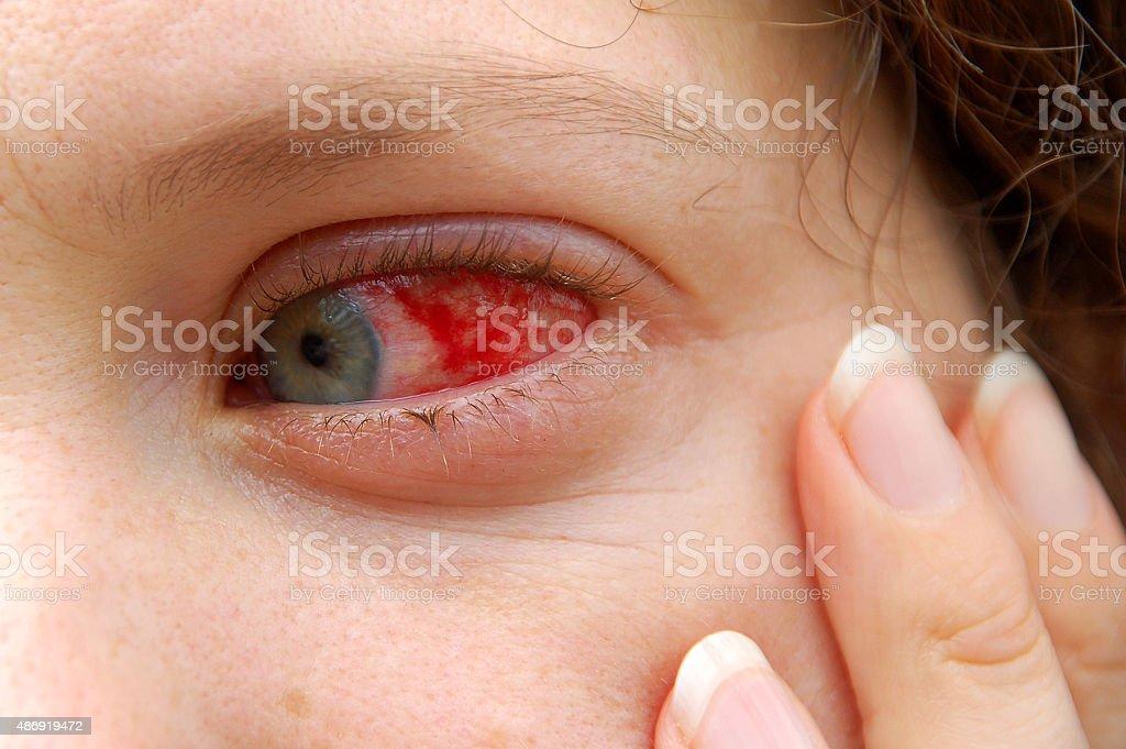 pink eye stock photo