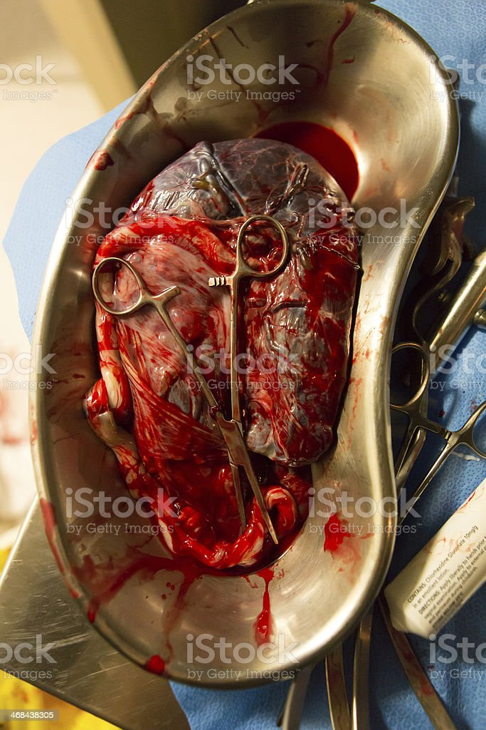 Placenta. stock photo