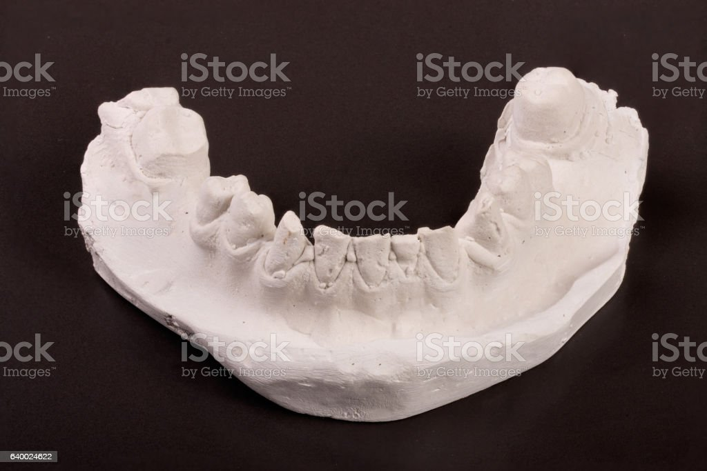 plaster cast of teeth with removable partial denture on a stock photo