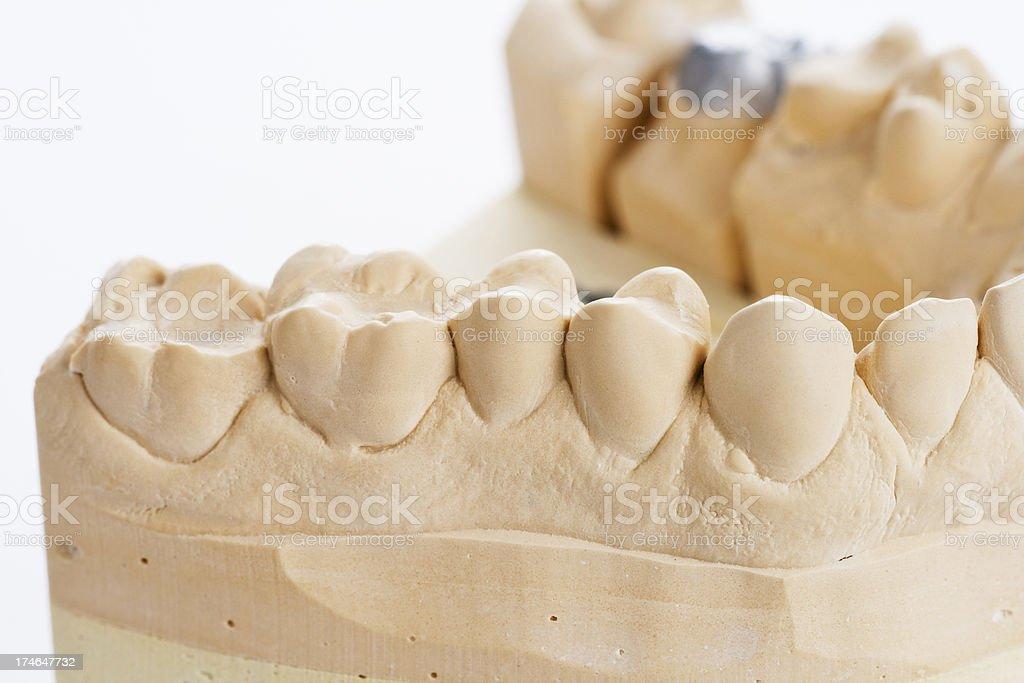 Plaster teeth royalty-free stock photo