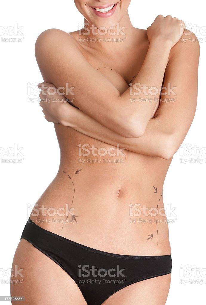 Plastic correction of body royalty-free stock photo
