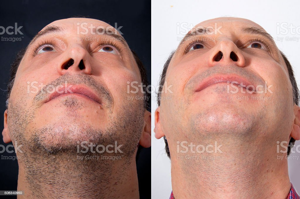Plastic correctional surgery of the nose - BEFORE and AFTER royalty-free stock photo