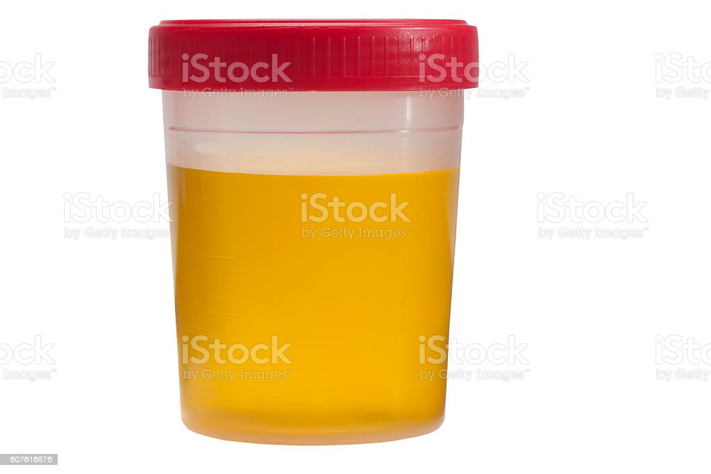 plastic jar with urine tests isolated on white background stock photo