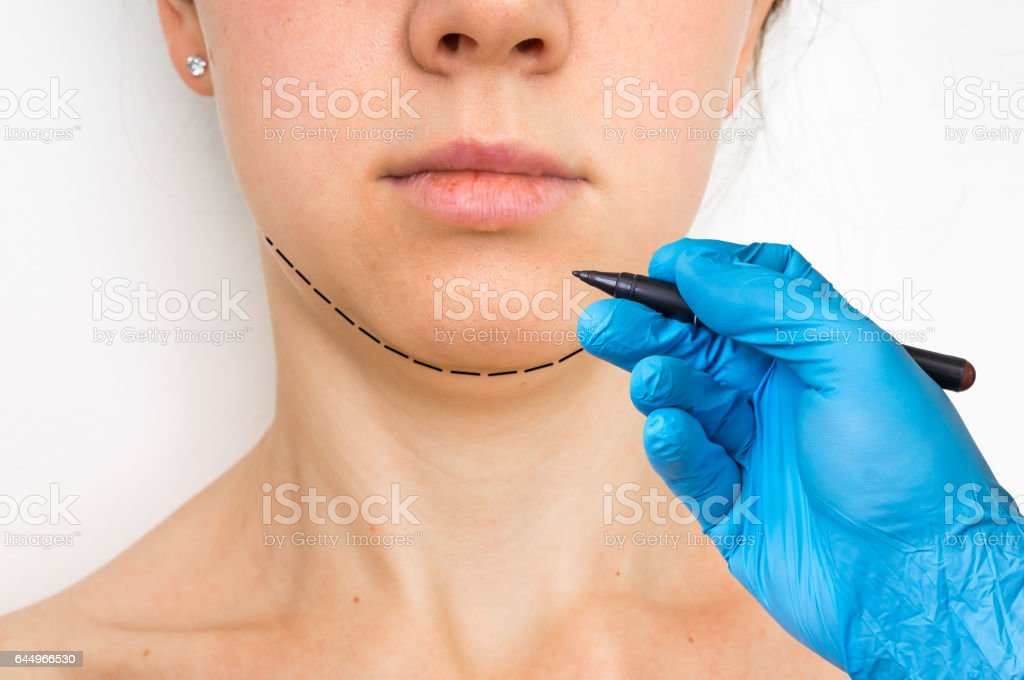 Plastic surgery doctor draw line on patient chin stock photo