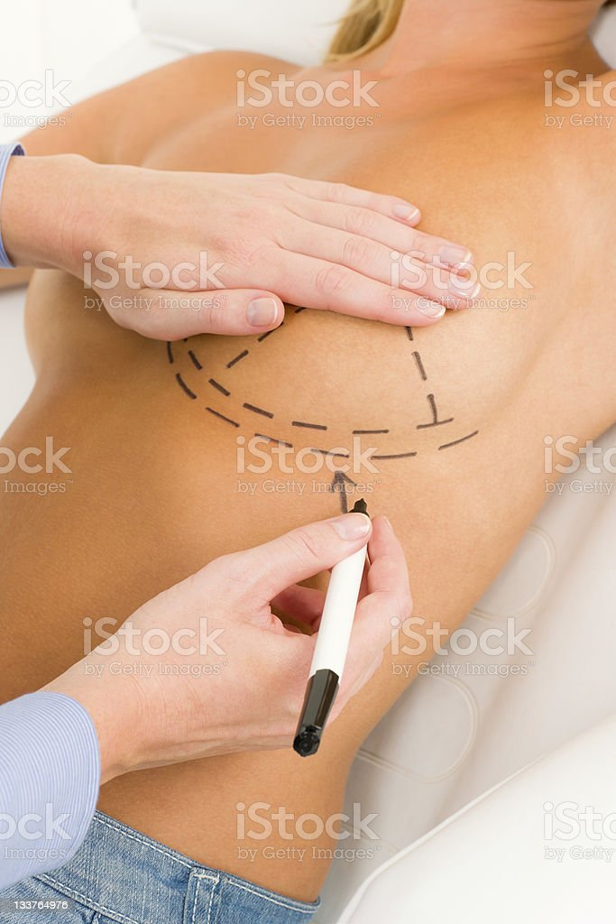 Plastic surgery doctor draw line patient breast royalty-free stock photo