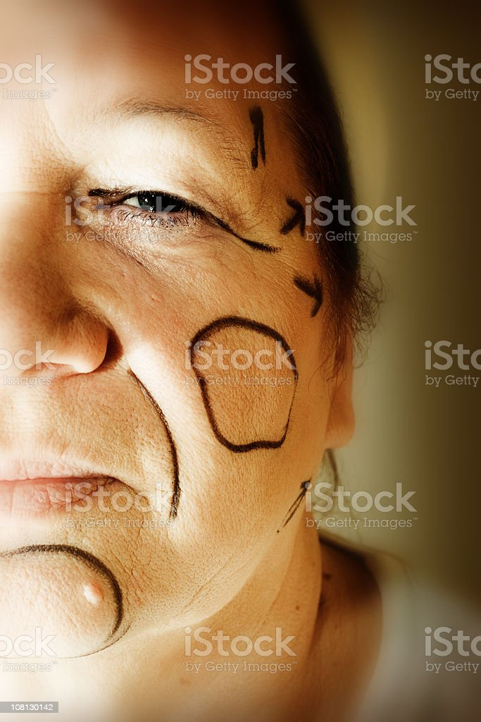 Plastic Surgery Lines Drawn on Woman's Face royalty-free stock photo