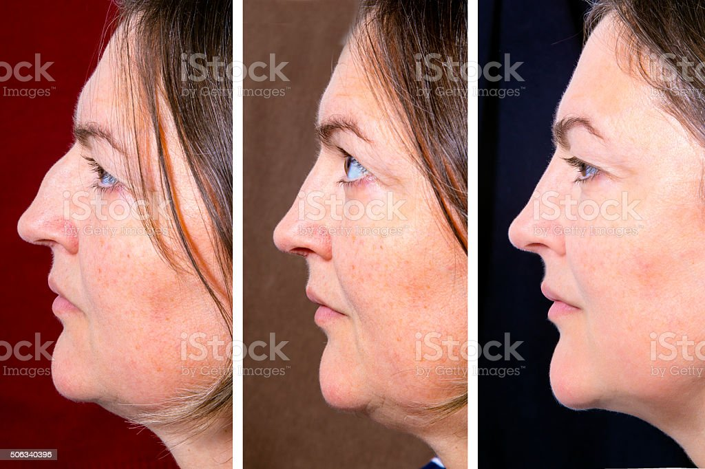 Plastic surgery of the face - BEFORE and AFTER stock photo