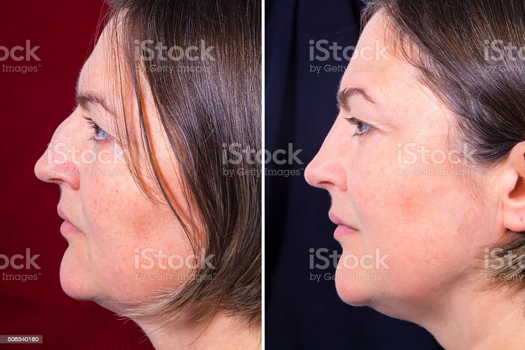 Plastic surgery of the nose - BEFORE and AFTER royalty-free stock photo