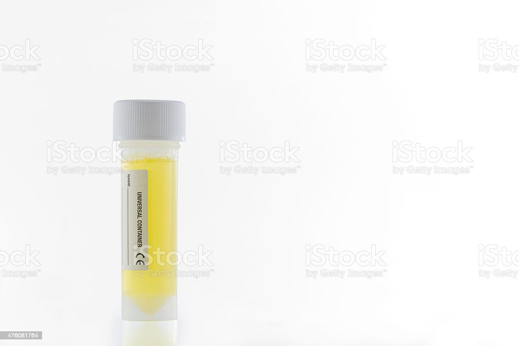 Plastic universal container containing yellow liquid like urine sample stock photo