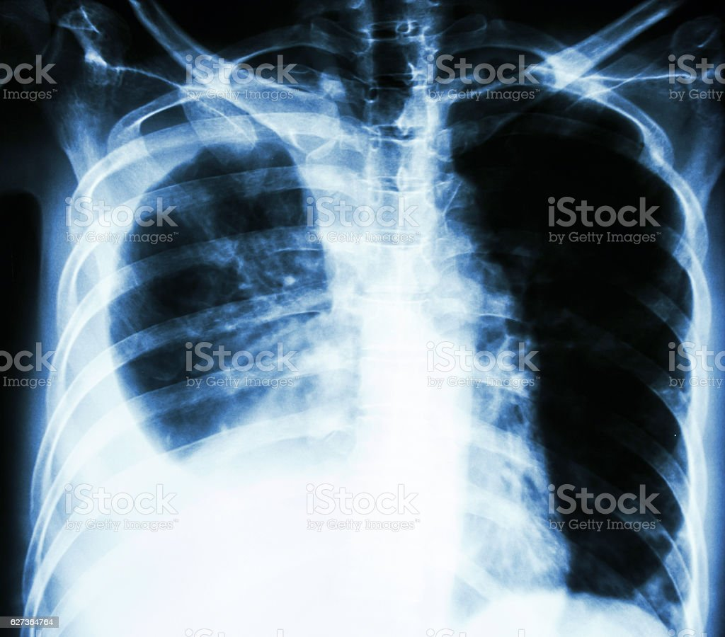 pleural effusion due to lung cancer stock photo