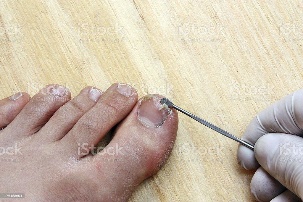 Plucking nail stock photo
