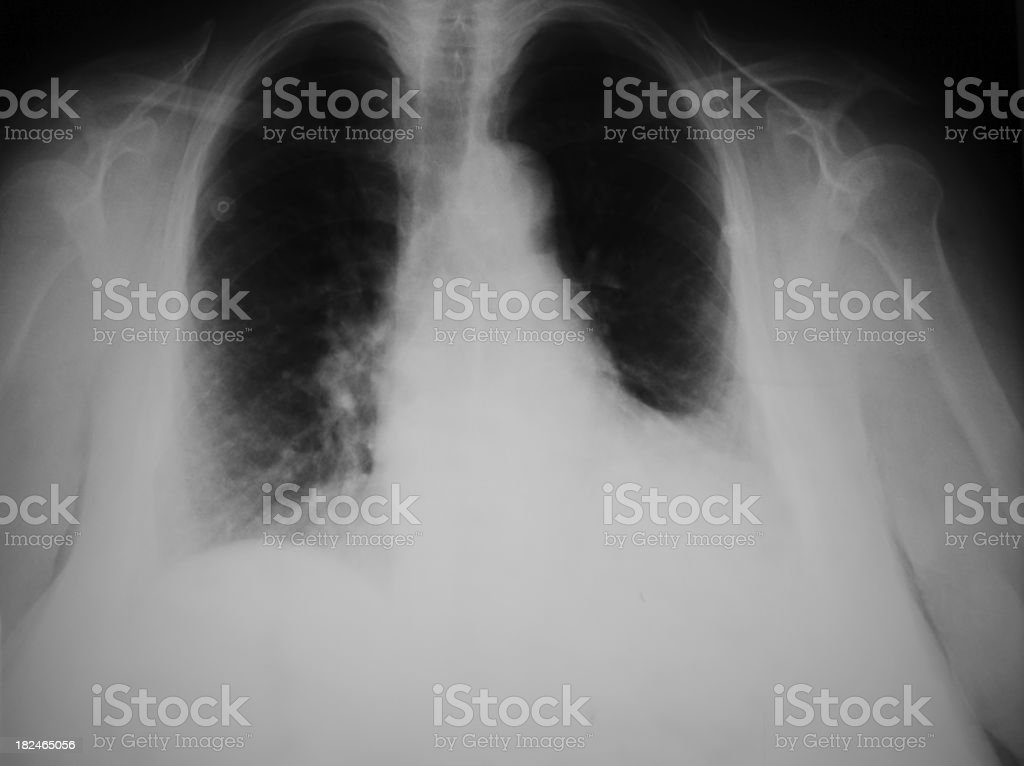 Pneumonia stock photo
