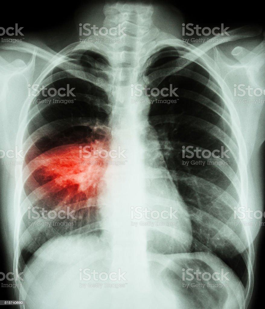 Снимки легких при пневмонии у ребенка фото
