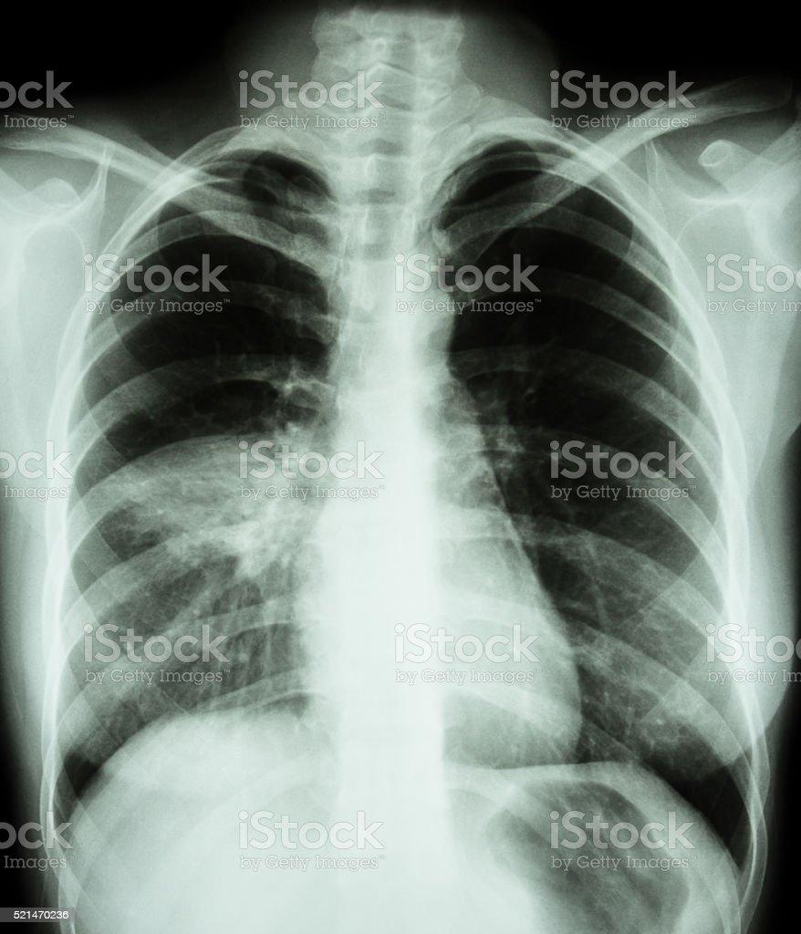 Pneumonia stock photo