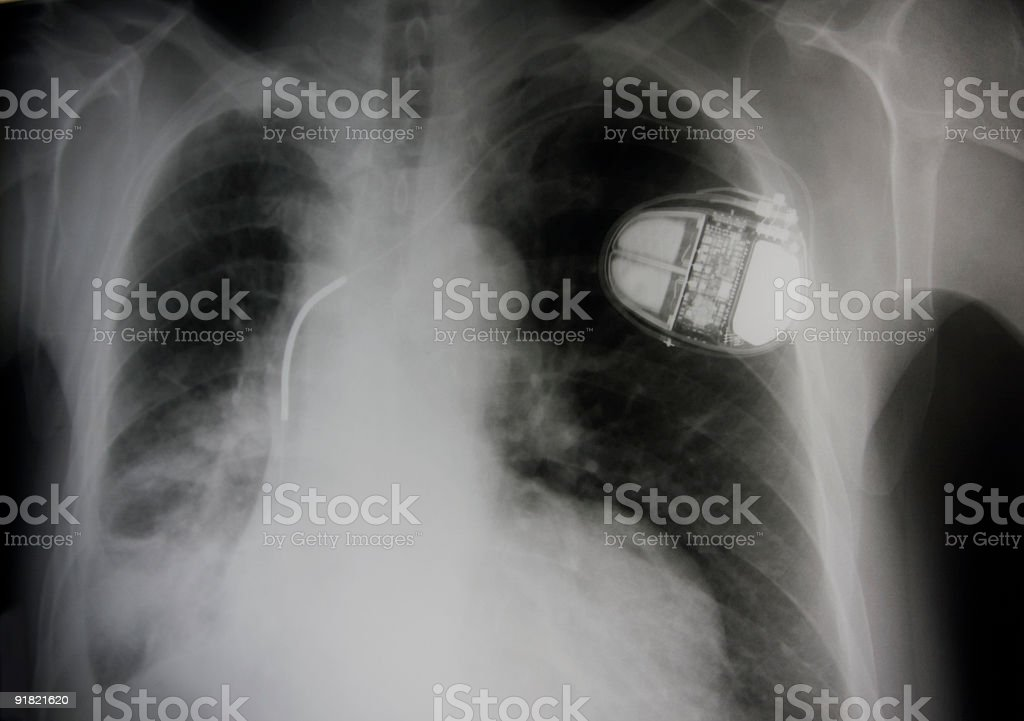 pneumonic and pace maker-heart battery cell lung royalty-free stock photo