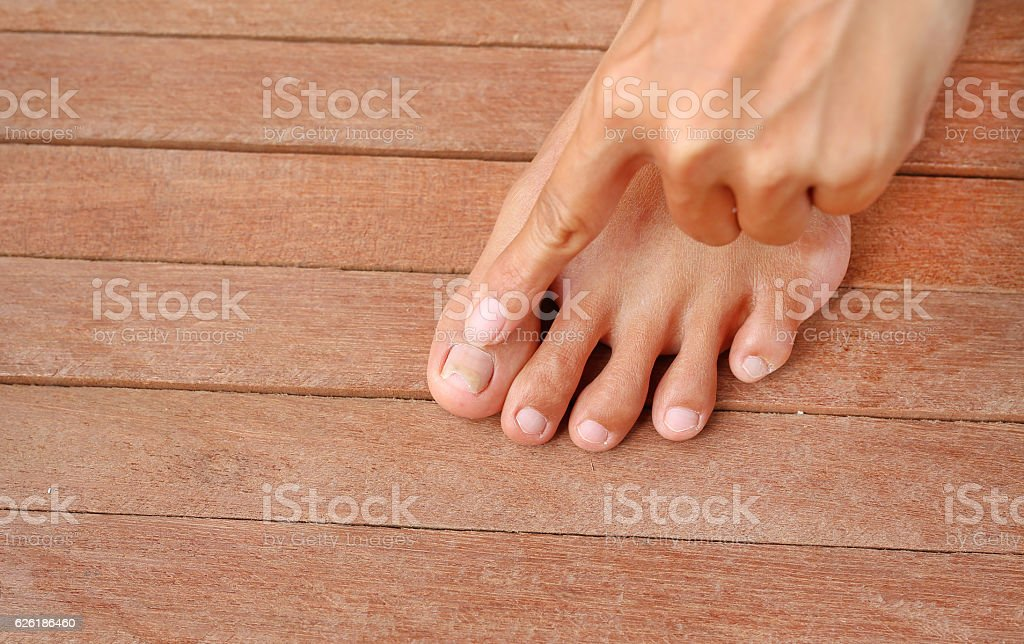 Point to Damaged toenail, broken nail stock photo