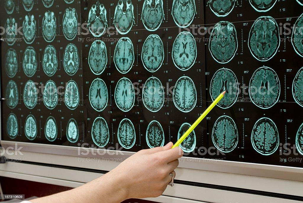 Pointing at MRI monitor screens royalty-free stock photo
