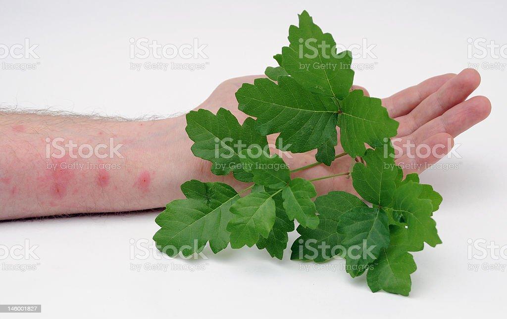 Poison Oak with Skin Rash stock photo