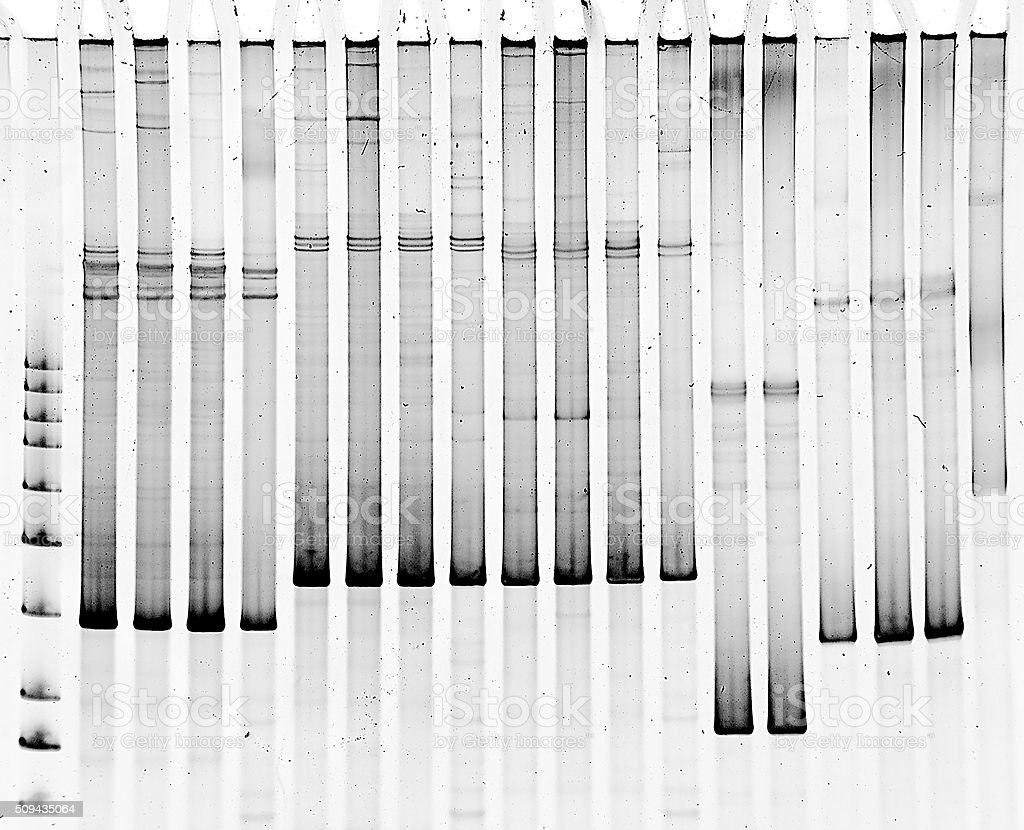 Polyacrylamide gel electrophoresis stock photo