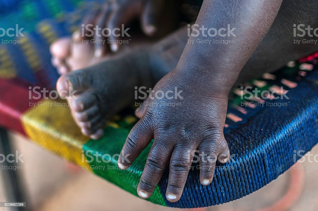 Polydactylie stock photo