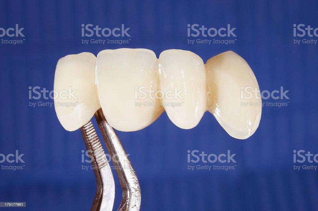 Porcelain crowns, dentistry bridge royalty-free stock photo