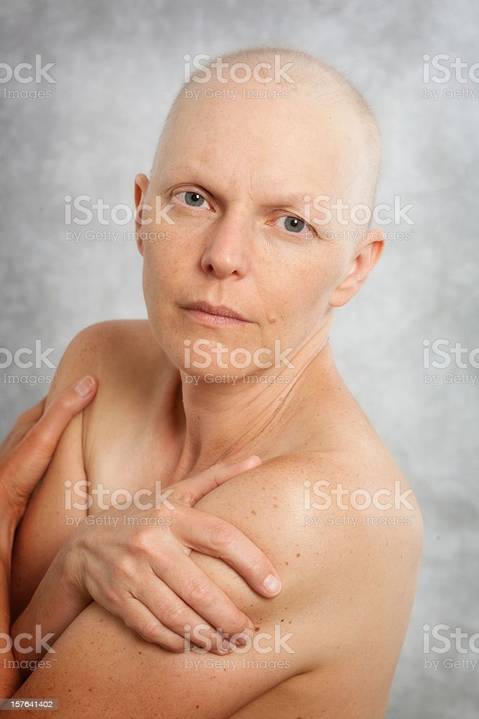 Portrait of a bare shouldered breast cancer patient. royalty-free stock photo