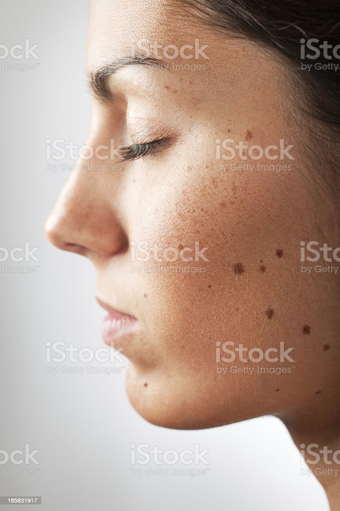 Portrait of a Woman with Melanoma Moles and Freckles (XXXL) royalty-free stock photo