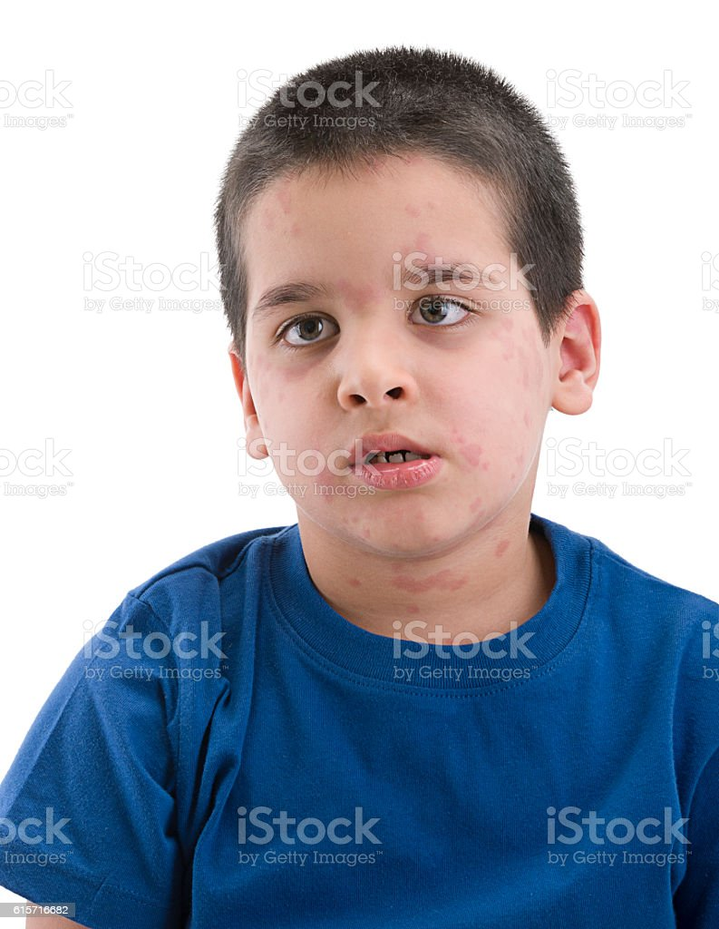 Portrait of an Allergic Child Isolated stock photo