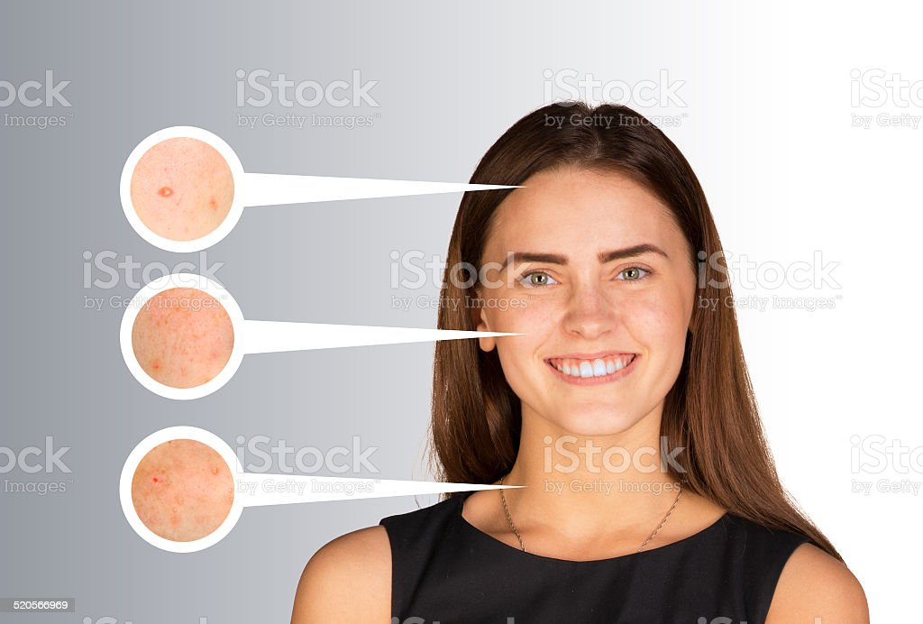 Portrait of beautiful girl. Callouts with zoom on the skin stock photo