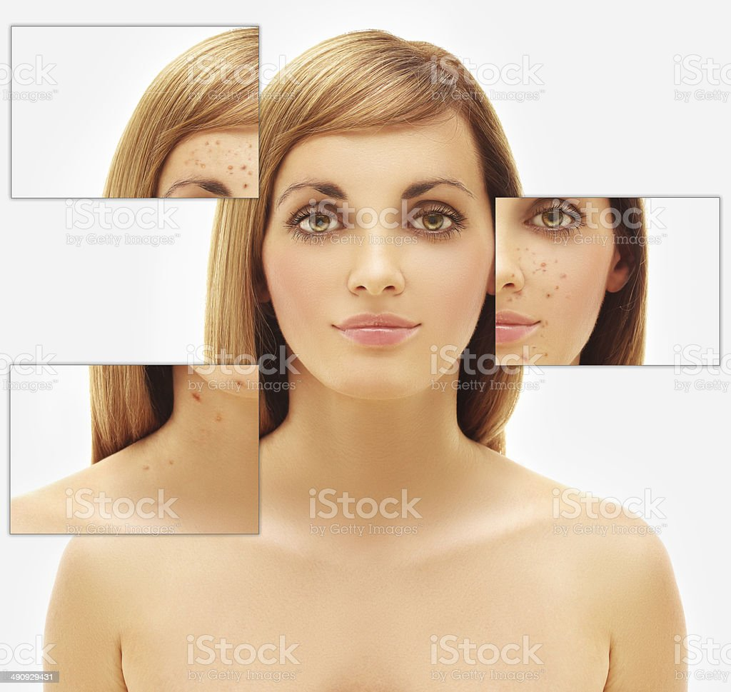 Portrait of beautiful woman with problem and clear skin royalty-free stock photo