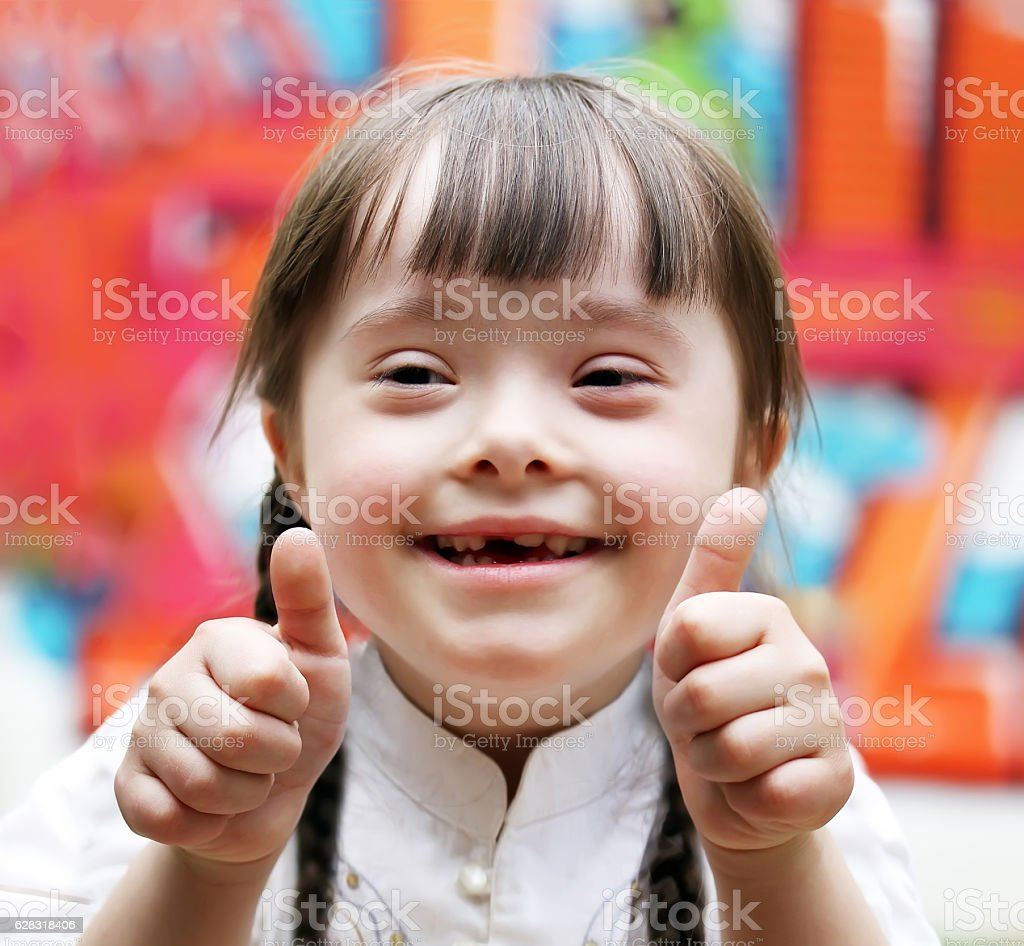 Portrait of girl with down syndrome stock photo