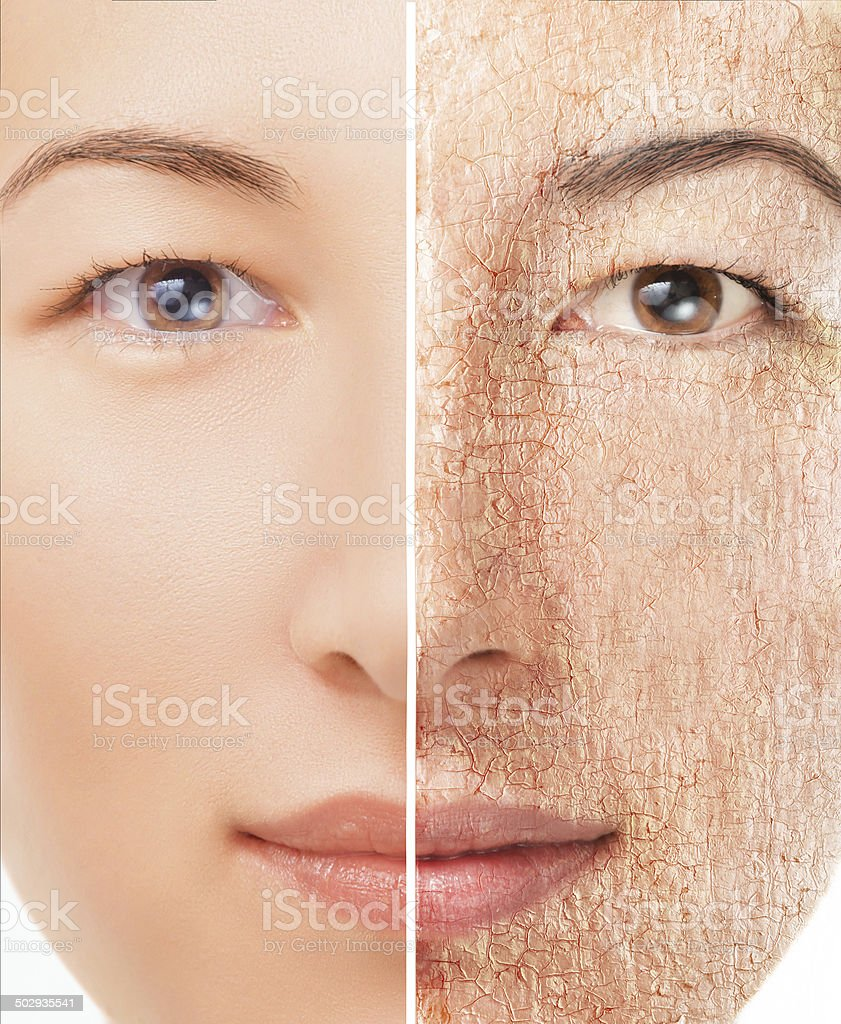 Portrait of woman with problem skin stock photo