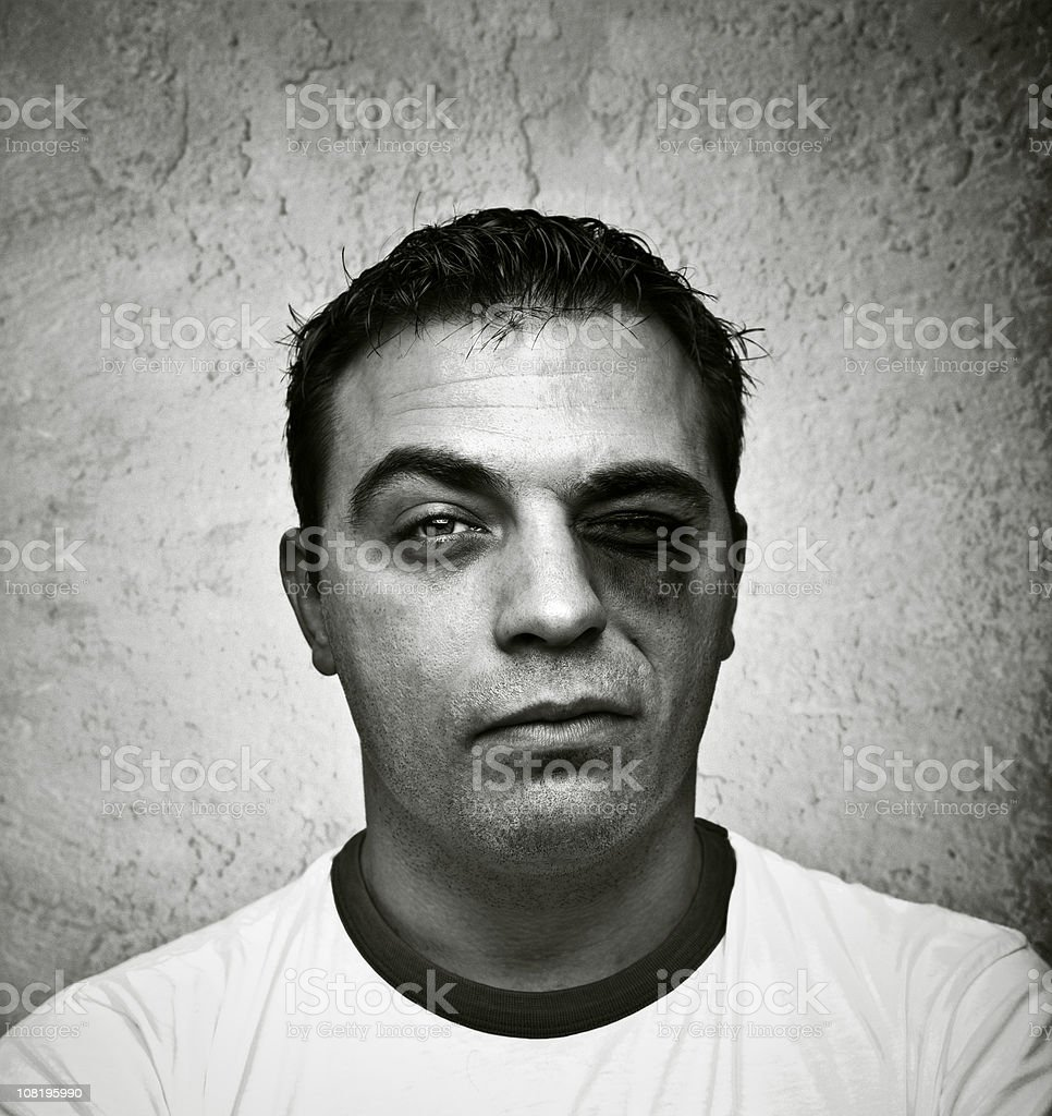 Portrait of Young Man with Bruised, Black Eye stock photo