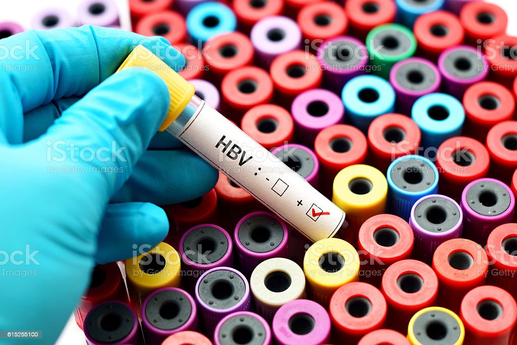 HBV positive stock photo