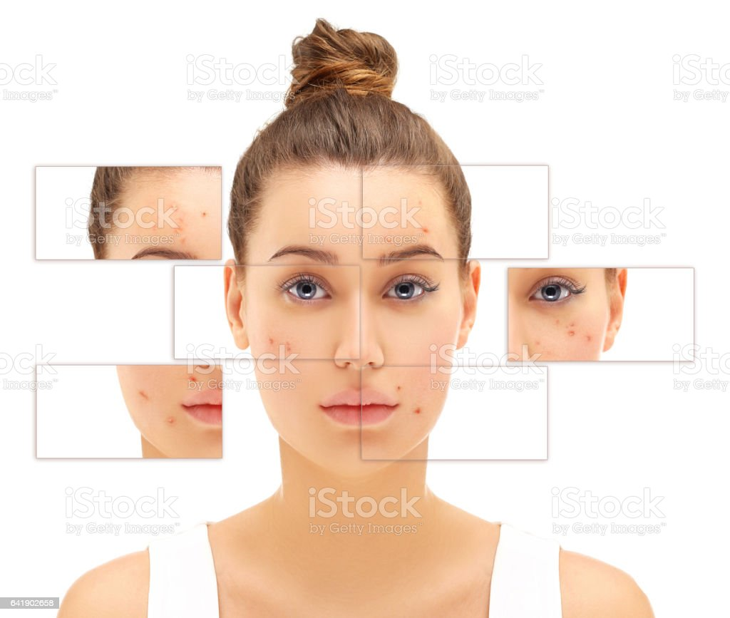 Post-Acne Marks,Portrait of beautiful girl  with problem and clear skin stock photo