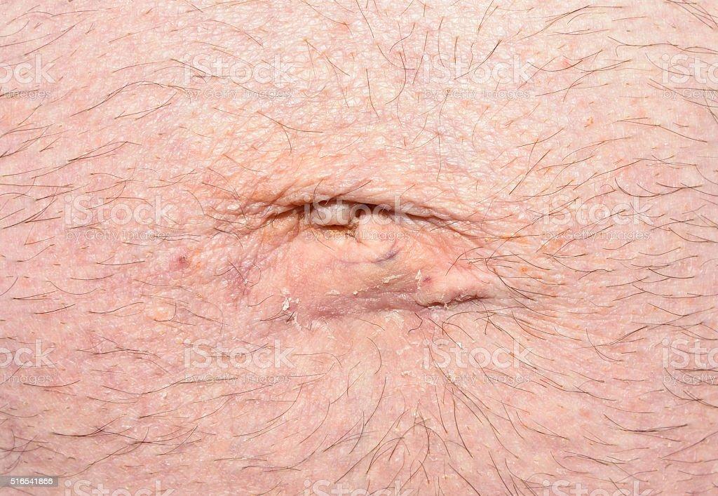 postoperative umbilical hernia stock photo