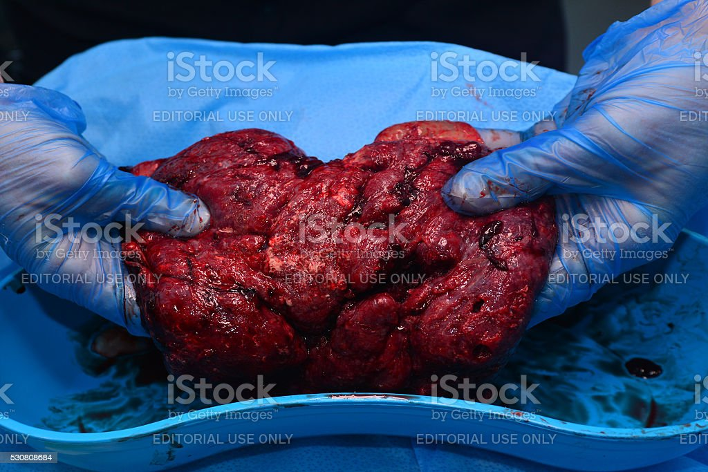 Pregnancy - pregnant woman placenta stock photo