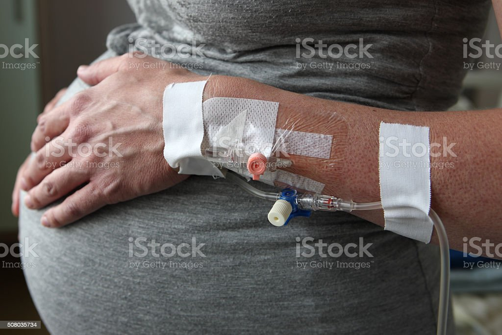Pregnant Woman Intravenous Blood Infusion stock photo