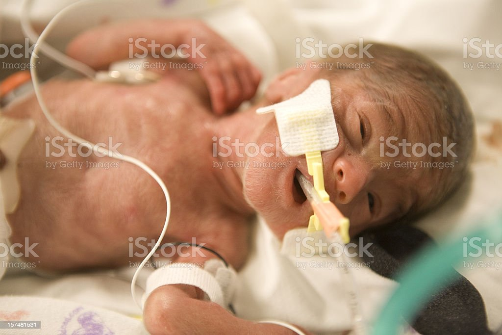 Premature Baby Boy royalty-free stock photo