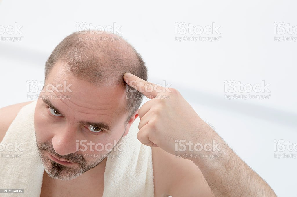 Premature baldness, man, 40s, white background stock photo