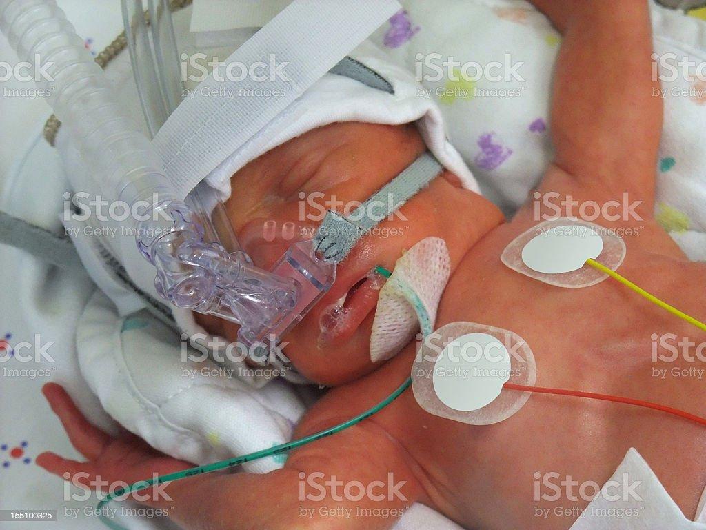 Premature in ICU stock photo