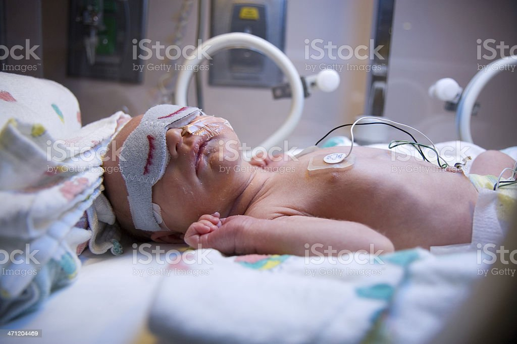 Premature Infant in Intensive Care royalty-free stock photo