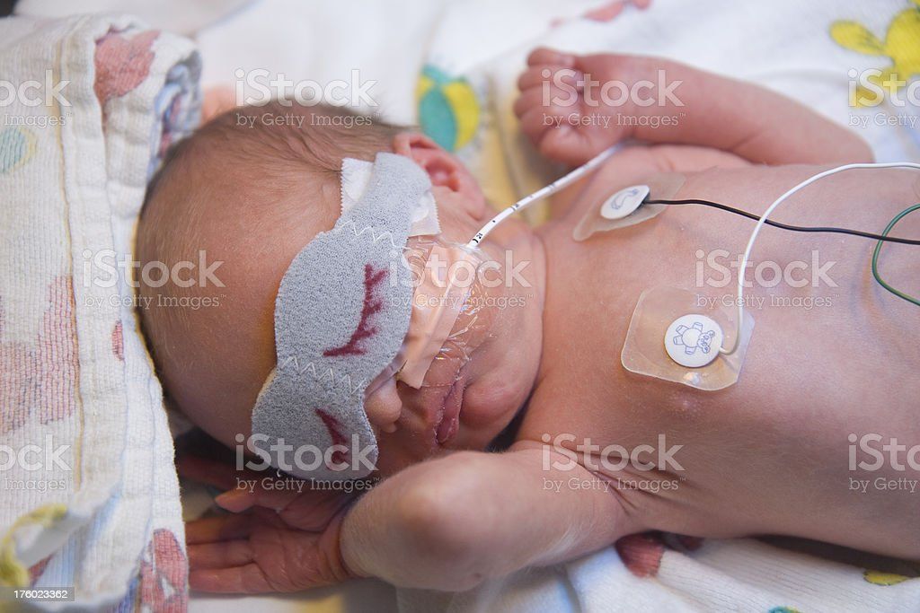 Premature Infant in the Hospital royalty-free stock photo