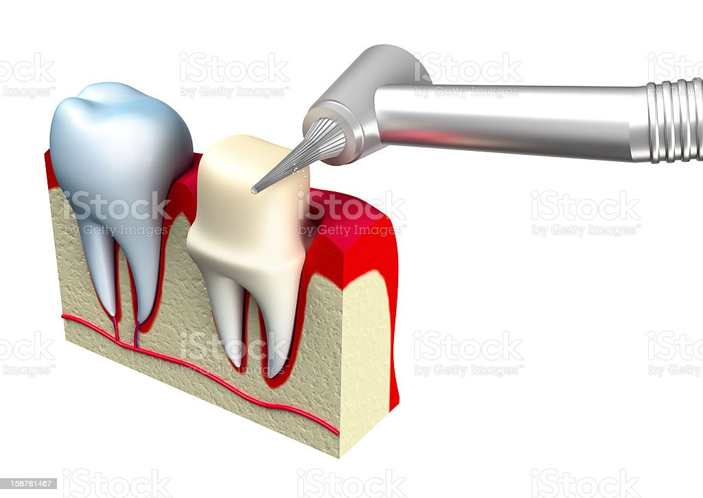 Preparation of the tooth crown for prosthetics. 3d image royalty-free stock photo