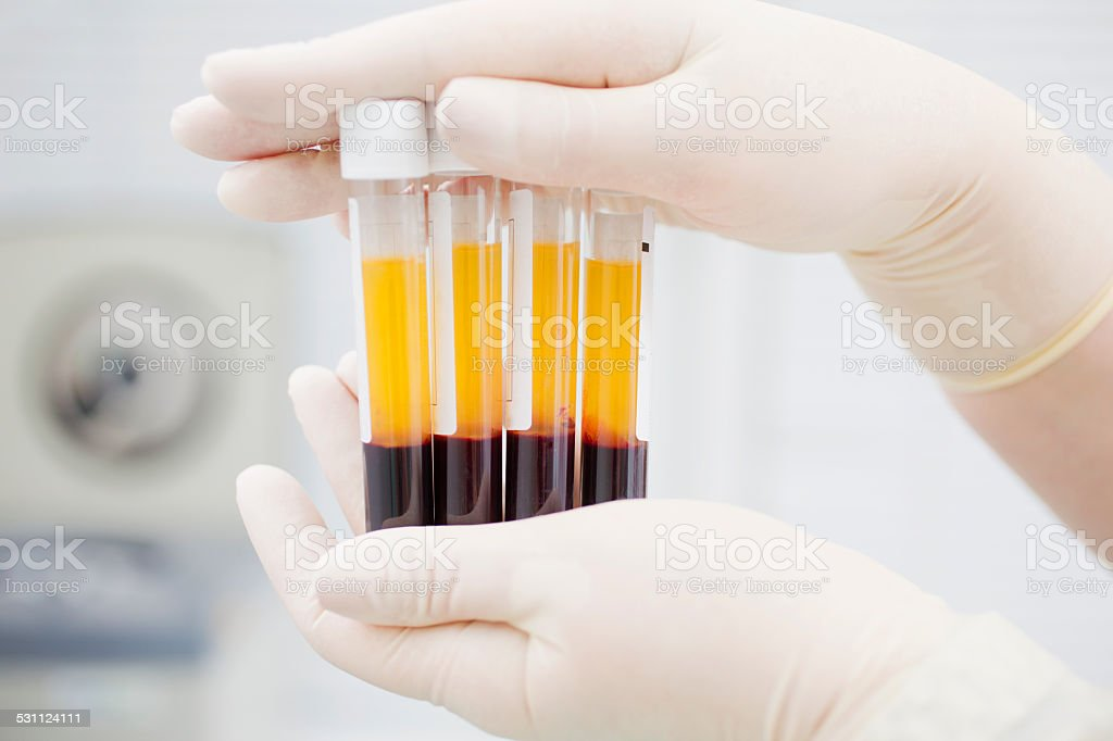 Preparing blood for Plasmolifting. stock photo
