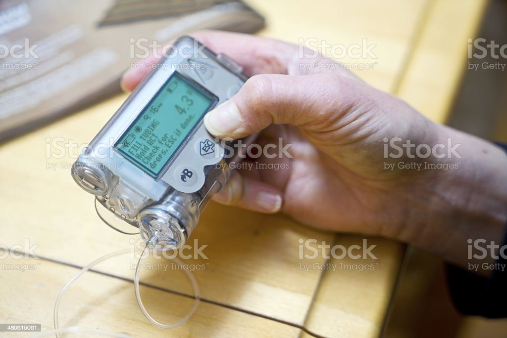 Preparing Insulin Pump for New Start stock photo