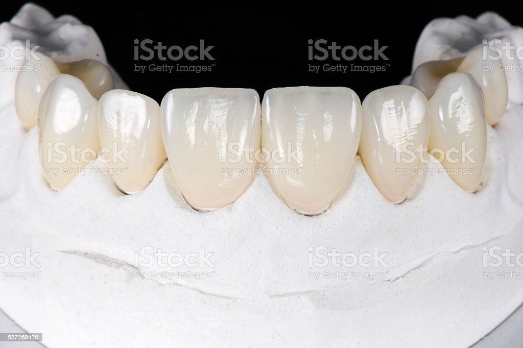 Prepless Veneers stock photo