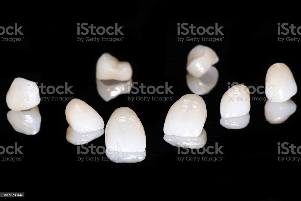 Prepless Veneers stock photo