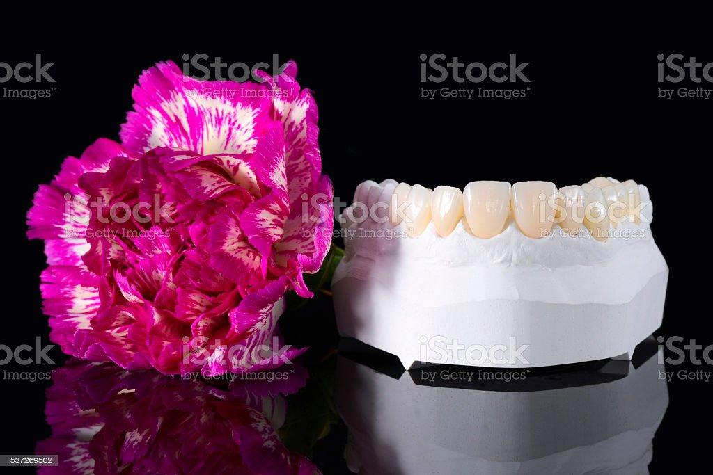 Prepless Veneers with Flower stock photo