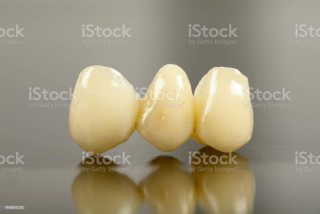 Pressed ceramic crown royalty-free stock photo